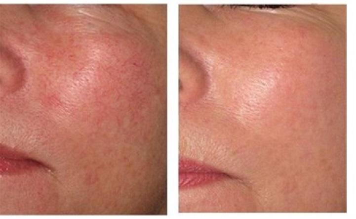 טיפול בקופורוז, אדמומיות העור
