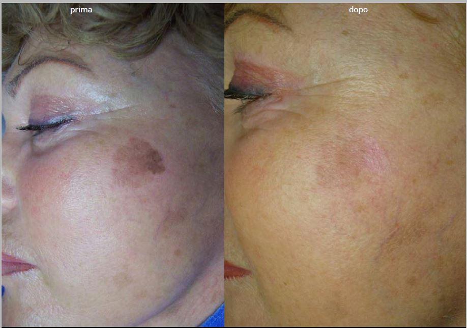 טיפול פיגמנטציה, הסרת כתמי גיל, העלמת כתמי שמש, הלבנת עור הפנים